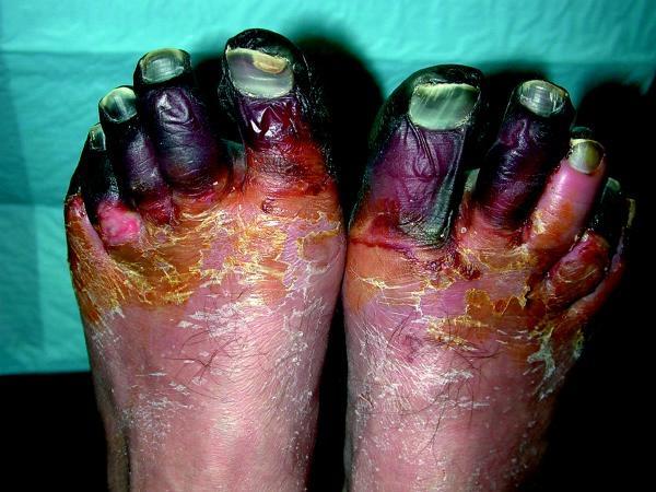 Severe Frostbite destroys tissue.