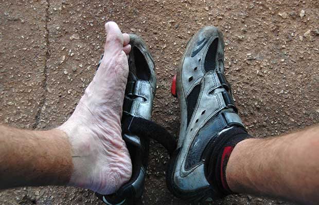 Early signs of possible trench foot if left untreated and the feet aren't dried out.